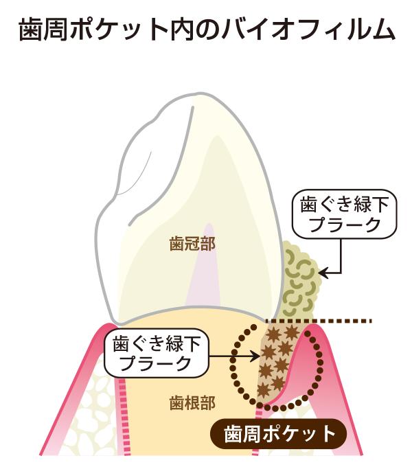 歯周ポケット内のバイオフィルム